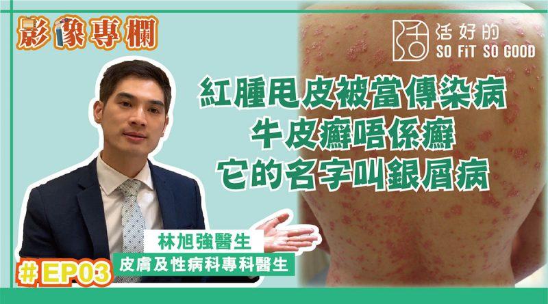 【影像專欄】紅腫甩皮就係傳染病?牛皮癬不是癬,它是銀屑病 | 皮膚及性病科EP03 | 林旭強醫生