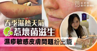 【皮膚】濕熱天氣易招壞菌引發濕疹敏感 如何恰當補充益菌抵禦?