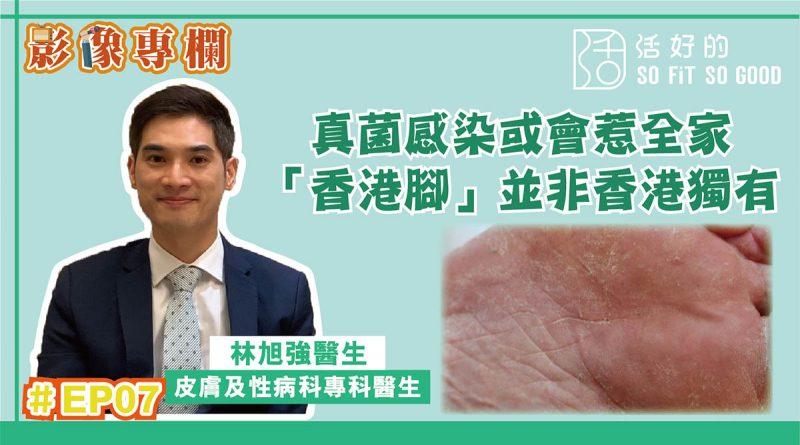 【影像專欄】真菌感染惹全家 「香港腳」非香港獨有 | 皮膚及性病科EP07 | 林旭強醫生