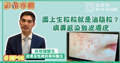 【影像專欄】面上生粒粒就是油脂粒?病毒感染致皮膚疣 | 皮膚及性病科EP10 | 林旭強醫生