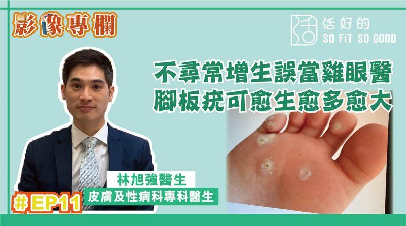 【影像專欄】不尋常增生誤當雞眼醫 腳板疣可愈生愈多愈大 | 皮膚及性病科EP11 | 林旭強醫生
