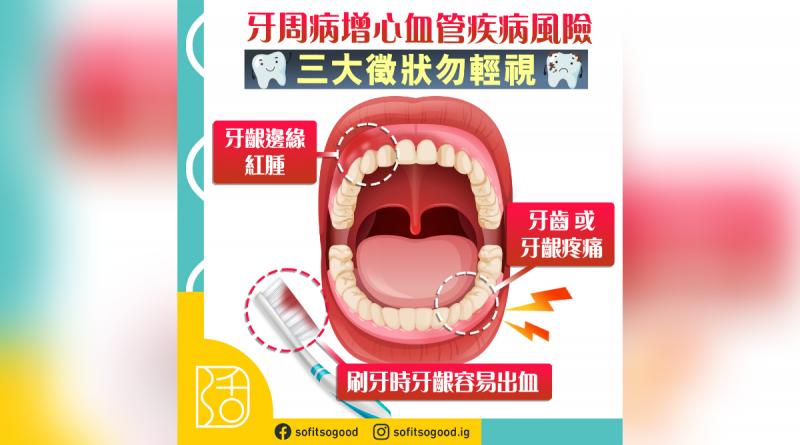 牙周病|增心血管疾病風險 三大徵狀勿輕視